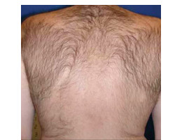 Hair Removal Case ID: 1723